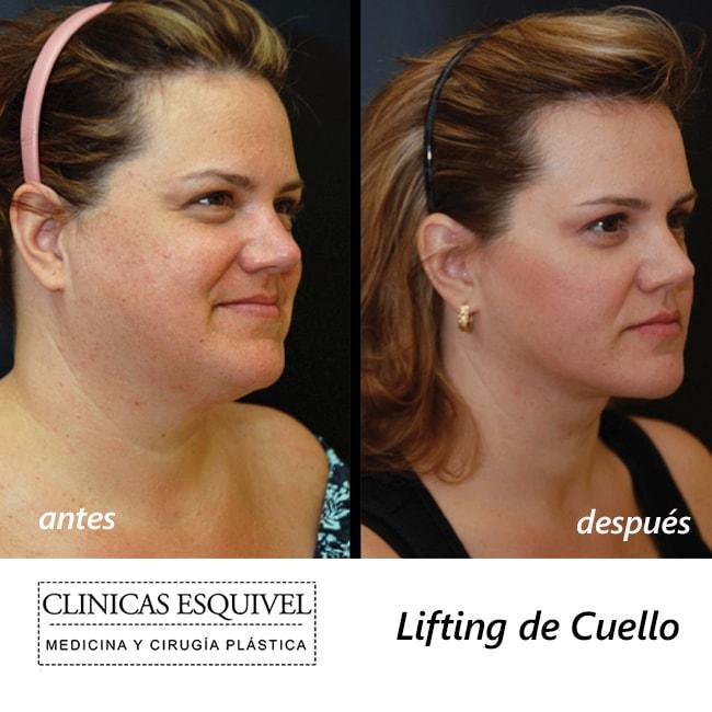 Lifting de Cuello antes y después