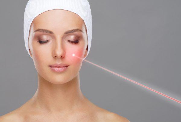 Eliminación de manchas faciales con laser